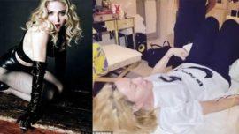 Madonna tedavisini sosyal medyadan paylaştı